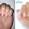 5 mẹo chữa triệt để móng tay ố vàng