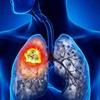 Những thói quen có thể dẫn đến ung thư phổi