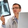 Nguyên nhân, triệu chứng ung thư phổi ở những người không hút thuốc lá