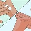 8 Cách Lấy Dằm Đâm Vào Tay Dễ Dàng Và Hiệu Quả Nhất