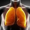 Cách lọc sạch phổi cực dễ cho người hút thuốc