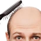 Lật mặt các nguyên nhân gây hói đầu ở nam giới