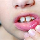 Mẹo đơn giản giúp thổi bay vết lở miệng cho bé