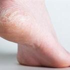 Cách trị gót chân khô nứt với baking soda