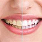 Răng ố vàng và những nguyên nhân bất ngờ