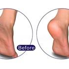 10 cách trị nứt gót chân hiệu quả