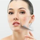 7 lý do khiến da bạn mãi bị mụn