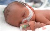 13 vấn đề thường gặp ở trẻ sinh non