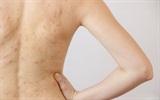 Phương pháp trị sạch mụn ở vùng lưng và ngực ngay tại nhà