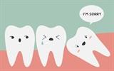 Nên làm gì khi mọc răng khôn?