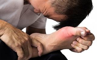 Bài thuốc chữa đau nhứt xương khớp hiệu quả bằng cây xấu hổ