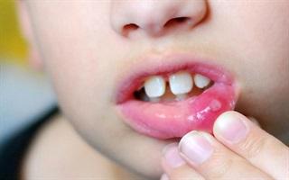 """Mẹo đơn giản giúp """"thổi bay"""" vết lở miệng cho bé"""